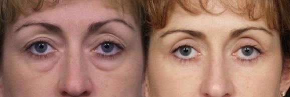 Augenlid sichtbare adern Krankheiten an