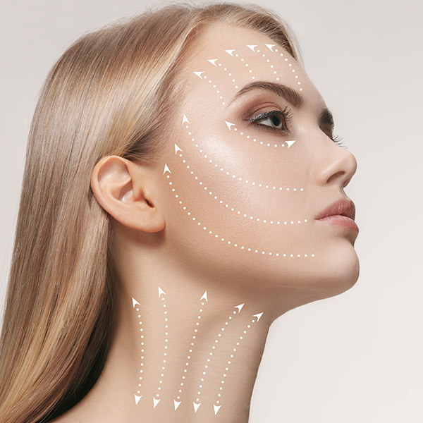 Das Fadenlifting stützt die Haut und regt das Gewebe zur Kollagenproduktion an.