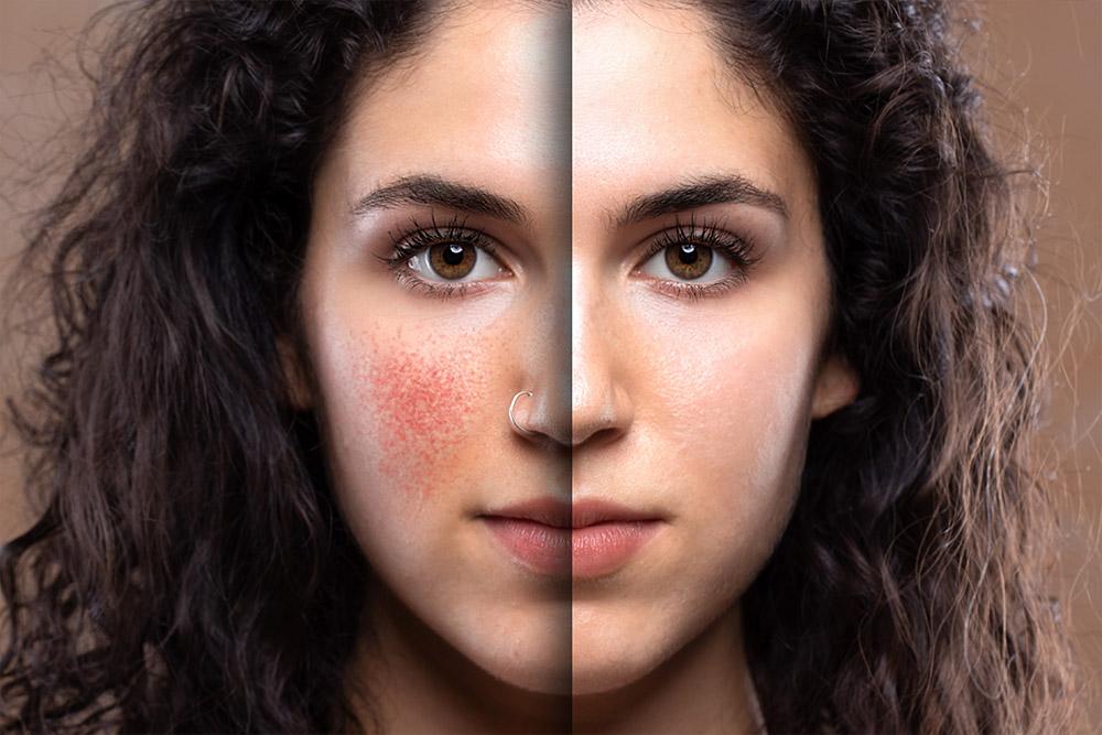 Dermatologie beschäftigt sich mit den Erkrankungen bzw. krankhaften oder allergisch hervorgerufenen Veränderungen der gesunden Haut.